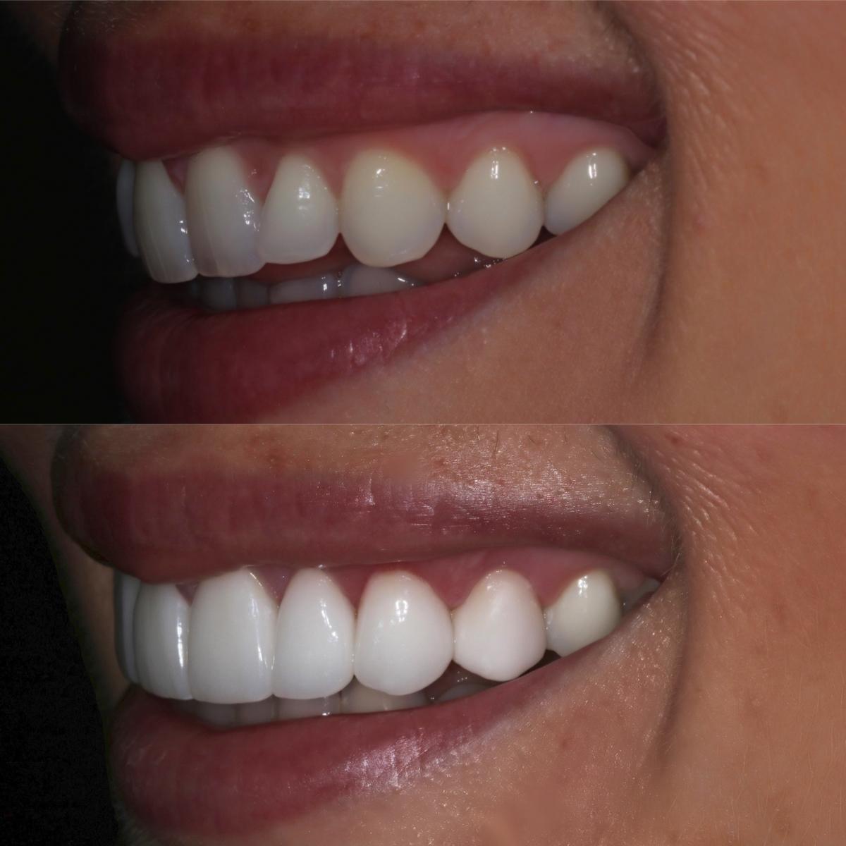 fashion jackson before after porcelain veneers dr scott harris dental